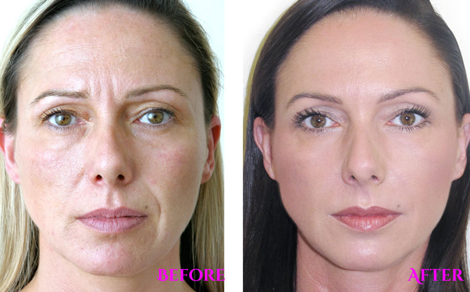 botox-before-and-after 2